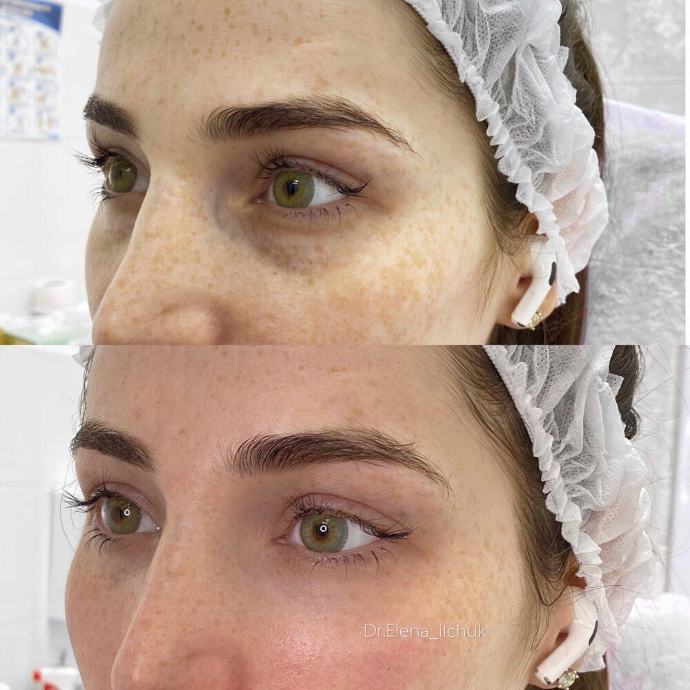 Коррекция носослезной борозды до и после
