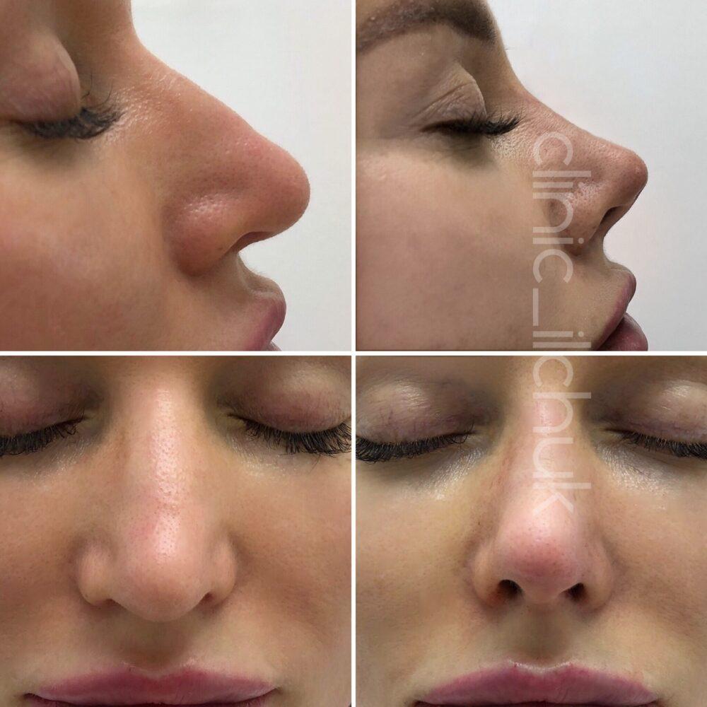 Поднятие кончика носа нитями