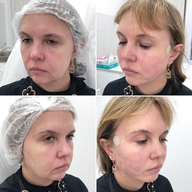 Подтяжка лица нитями Аптос до и после