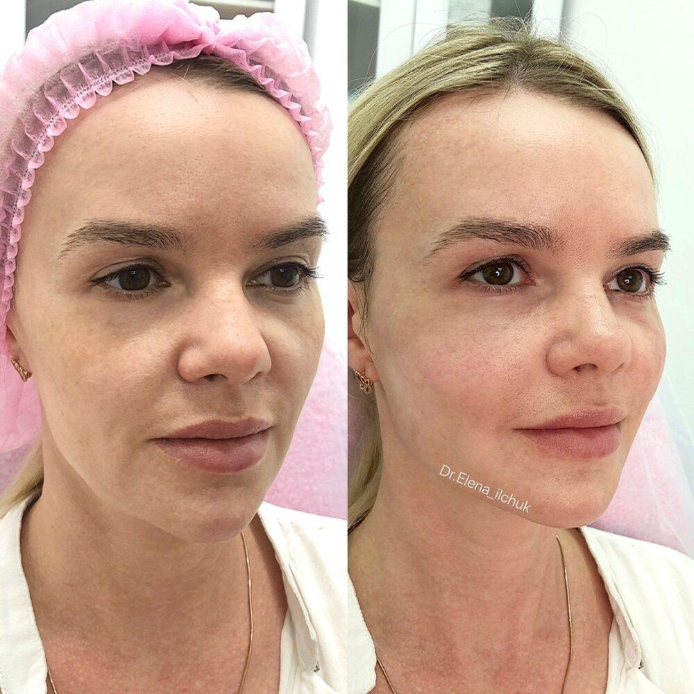 https://clinic-ilchuk.ru/wp-content/uploads/2019/12/IMG_7982.jpg