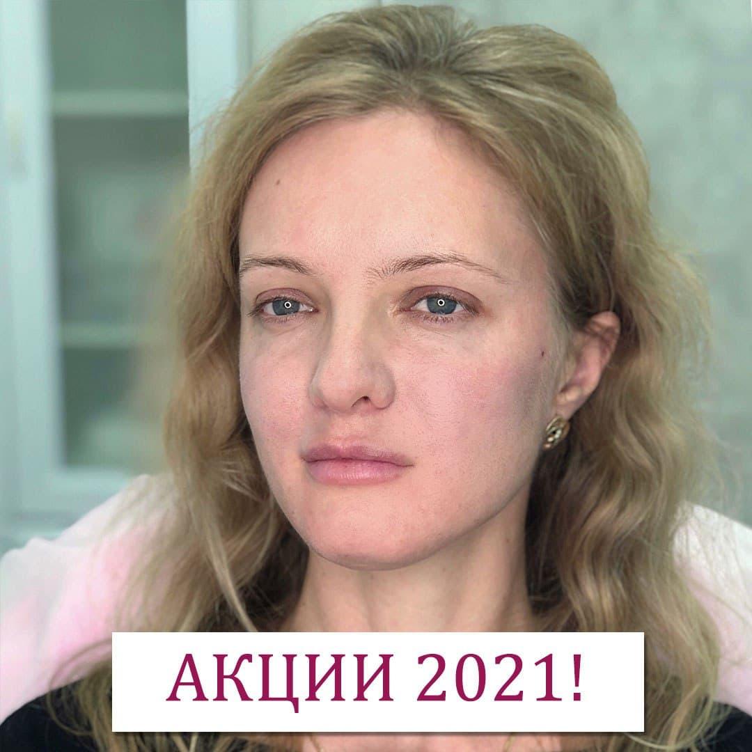 https://clinic-ilchuk.ru/wp-content/uploads/2019/12/photo_2021-01-12_21-15-35.jpg