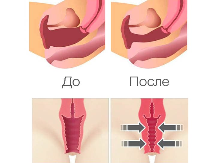 https://clinic-ilchuk.ru/wp-content/uploads/2020/03/2-2.jpg