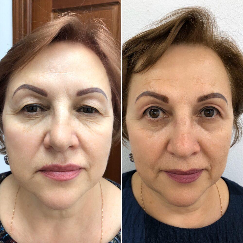 https://clinic-ilchuk.ru/wp-content/uploads/2020/05/IMG_0463.jpg